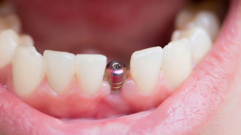 Dental Implants And What You Need to Know About Them