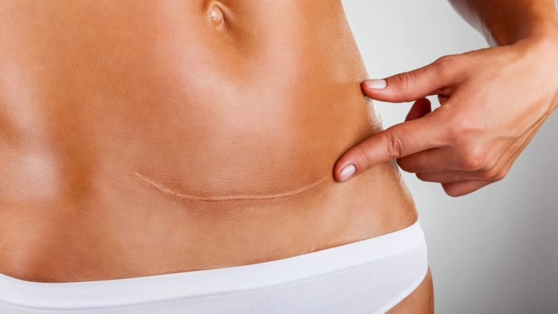 Getting a Tummy Tuck After Having a Child
